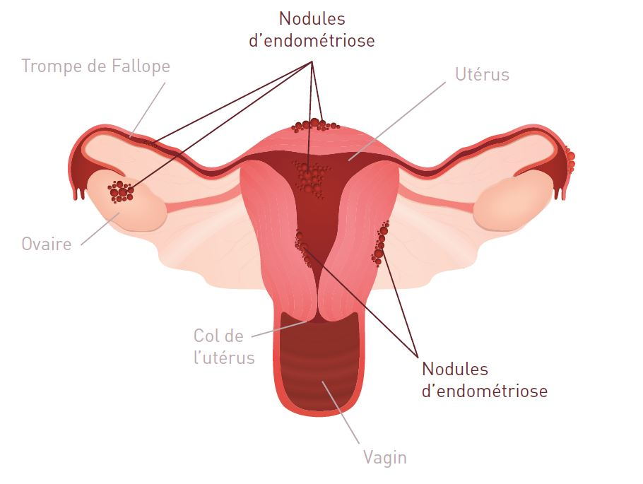 endometriose-shema