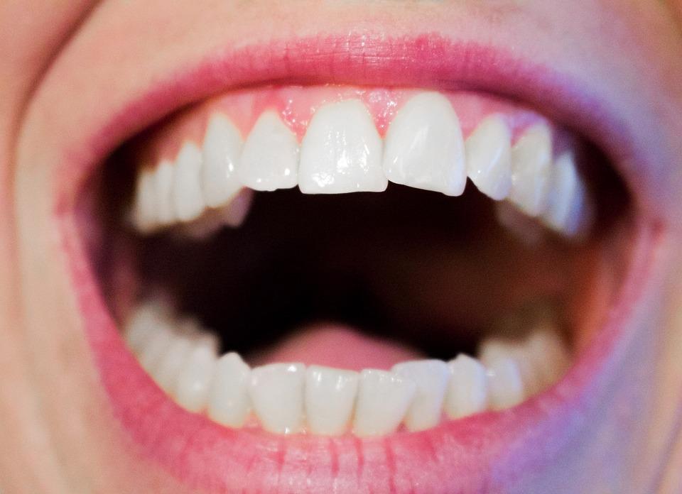 Quel appareil dentaire pour un adulte 3