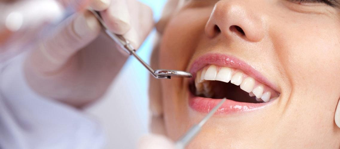 Consulter un dentiste pour avoir des dents en parfaite santé